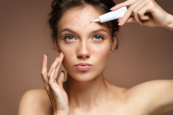 Mituri demontate despre acnee