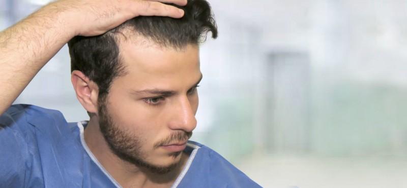 Modalitati prin care poti reduce caderea parului in randul barbatilor